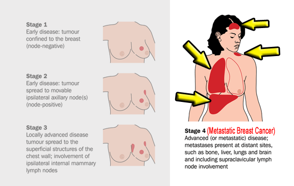 Treatment for metastatic breast cancer to liver