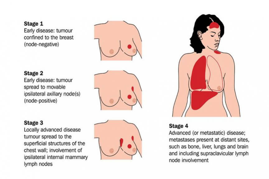 Breast cancer with mets to lymph and lung